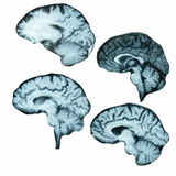 Magnetic resonance (MR) scan brain isolated Royalty Free Stock Photos