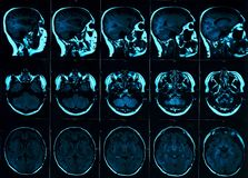 Magnetic resonance scan of the brain with skull. MRI head scan on dark background blue color royalty free stock image