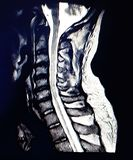 Magnetic resonance scan of the cervical spine. stock image