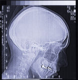 Magnetic resonance scan of human head Royalty Free Stock Images