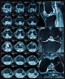 Magnetic resonance tomography (MRT) images of knee Royalty Free Stock Photo