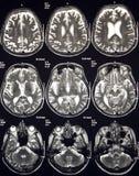 Magnetische Resonantie van Hersenen Stock Afbeelding