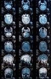 Magnetische resonantiebeeld MRI van de hersenen stock foto