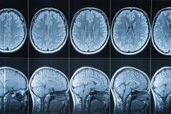 Magnetische Resonanz- Darstellung des Kopfes, MRI stockfotos