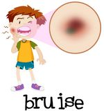Magnified boy with bruise. Illustration Royalty Free Stock Images