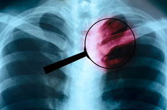 Magnified image x-ray human chest is danger Royalty Free Stock Image