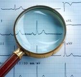 Magnifier on cardiogram Stock Photos