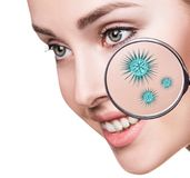 Magnifying glass with microbes on female face. Isolated on white. Causative agents of acne concept Royalty Free Stock Image