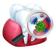 Magnifying Glass Tooth Gum Bacteria Concept Stock Photo