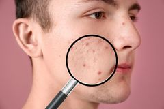 Magnifying young man`s skin with acne problem. On color background stock photos