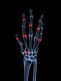 Main arthritique mise en valeur Image libre de droits