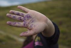 Main avec des taches de myrtille dessus Photos libres de droits