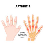 Main avec l'arthrite Images stock