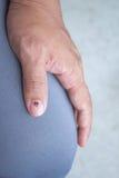 Main avec le clou meurtri images libres de droits