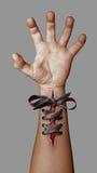 Main blessée Image libre de droits