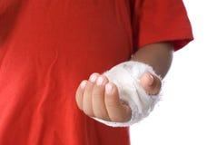 Main blessée Images libres de droits