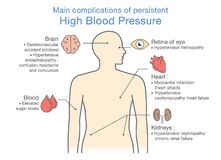 Main complications of persistent High Blood Pressure. Illustration about health and medical Royalty Free Stock Image
