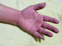 main gonflée de femme images stock