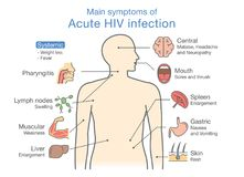 Main symptom of Acute HIV infection. Illustration about diagram for patient Royalty Free Stock Image