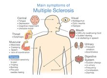 Main symptoms of Multiple Sclerosis. Illustration about medical diagram of health check up Royalty Free Stock Images