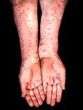 Mains avec le psoriasis Images stock