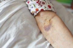 Mains d'une femme supérieure sur la canne Se situer supérieur dans un lit Image libre de droits
