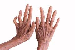 Mains d'une lèpre d'isolement sur le fond blanc Photos libres de droits