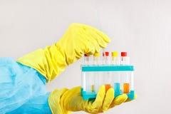 Mains de chimiste dans les gants en caoutchouc faisant l'analyse chimique dans le laboratoire Images stock