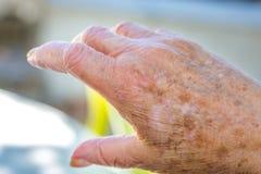 Mains de dame âgée avec des problèmes de peau Image libre de droits