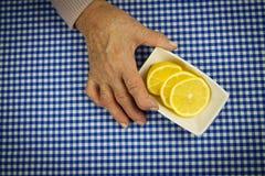 Mains de rhumatisme articulaire Image stock