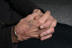Mains de vieille dame avec l'arthrite Photographie stock