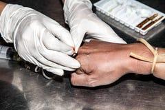 mains des injections de seringue d'utilisation de charlatan à la main patiente image stock