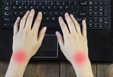 Mains femelles, travail de douleurs articulaires à un ordinateur, plan rapproché, syndrome de tunnel photo stock