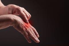Mains supérieures. Souffrance de la douleur et du rhumatisme photographie stock libre de droits