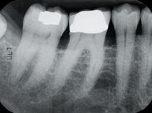 Mais baixos raios X peridentais esquerdos Foto de Stock Royalty Free