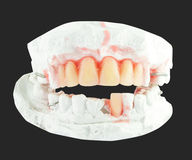 Make denture Stock Photography