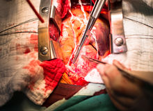Make suture ascending aorta. Before open to insert cannulation Stock Image