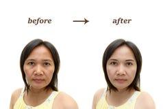 Make-up oder plastische Chirurgie Stockfoto