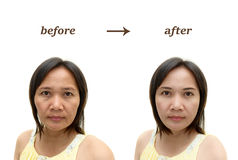 Makeup eller plastikkirurgi Arkivfoto