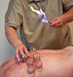 Making cupping-glass massage Stock Photography