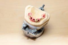 Making Facial Dental Prosthetic Stock Photography