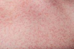Makro der Haut mit Hautausschlag lizenzfreie stockfotografie