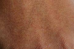 Makro der menschlichen Handhaut Stockbild