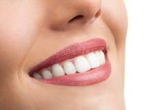 Makro som är nära upp av perfekta tänder. royaltyfri fotografi