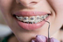 Makro som skjutas av vita tänder med hänglsen Kvinnlig patient med metallkonsoler på det tand- kontoret orthodontic behandling fotografering för bildbyråer