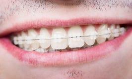 Makro som skjutas av vita tänder med hänglsen Le den manliga patienten med metallkonsoler arkivfoton