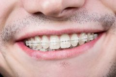 Makro som skjutas av vita tänder med hänglsen Le den manliga patienten med metallkonsoler fotografering för bildbyråer