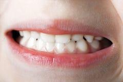 makro- zęby Zdjęcia Stock