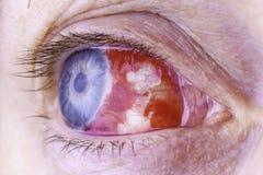 Makrobild eines roten blutunterlaufenen Auges lizenzfreie stockfotos