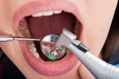 Makroskott av den tand- professionelln som borstar med tandläkarespegeln arkivfoto